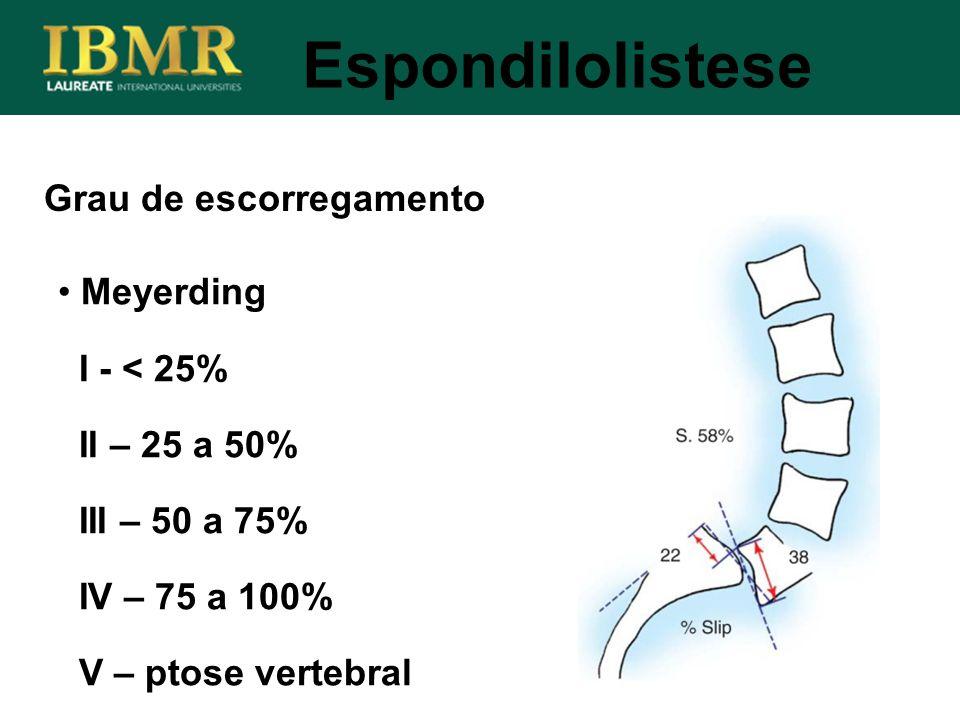Espondilolistese Grau de escorregamento Meyerding I - < 25%