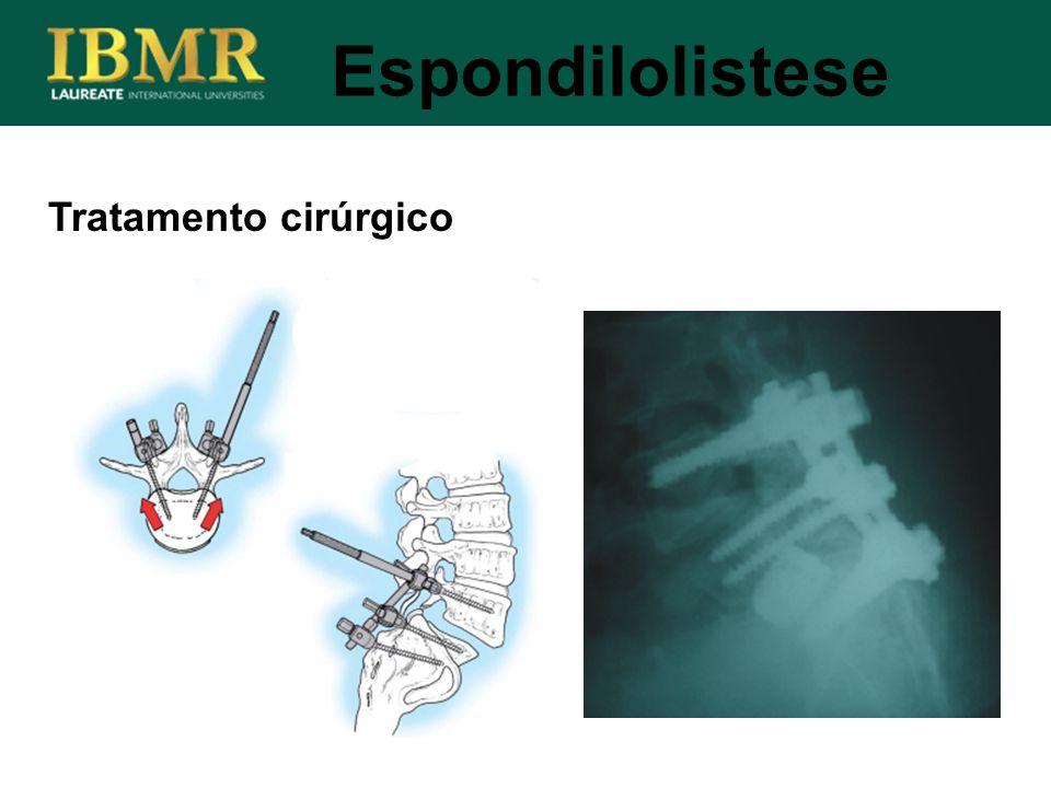 Espondilolistese Tratamento cirúrgico