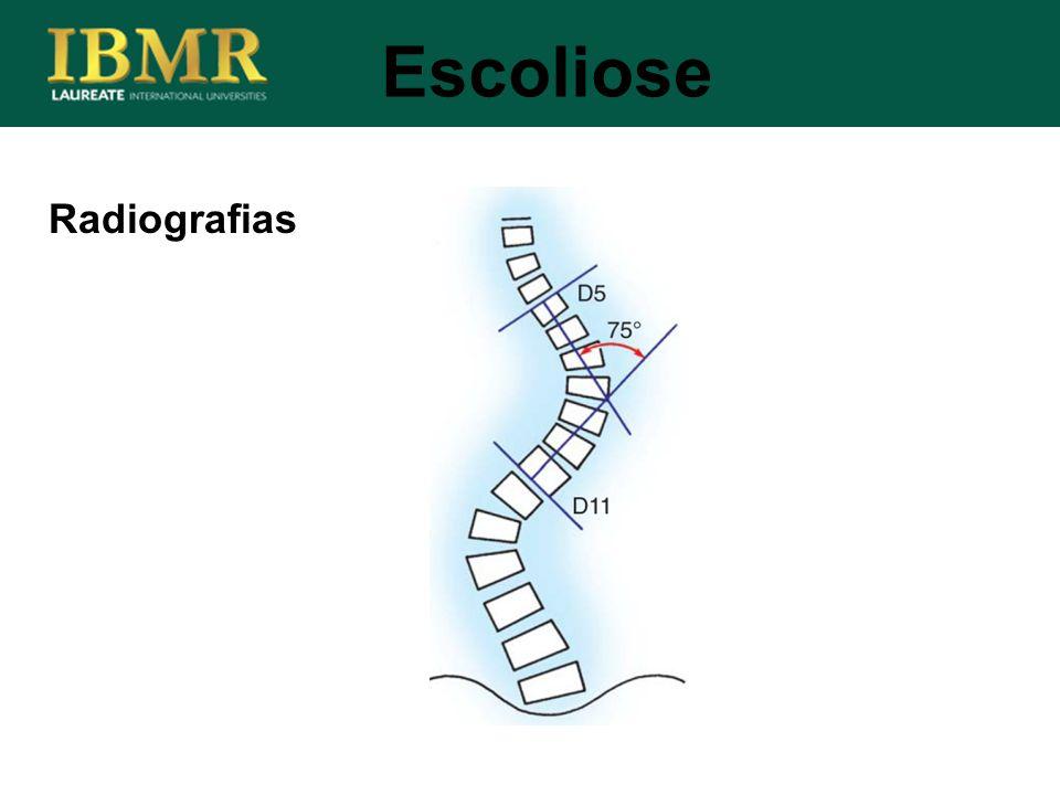 Escoliose Radiografias