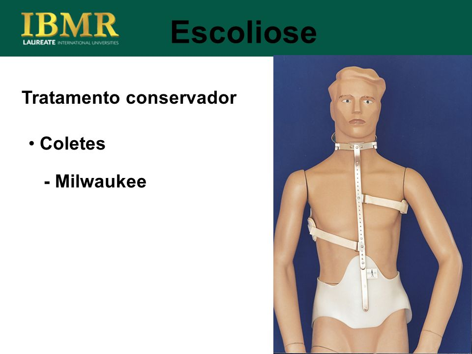 Escoliose Tratamento conservador Coletes - Milwaukee