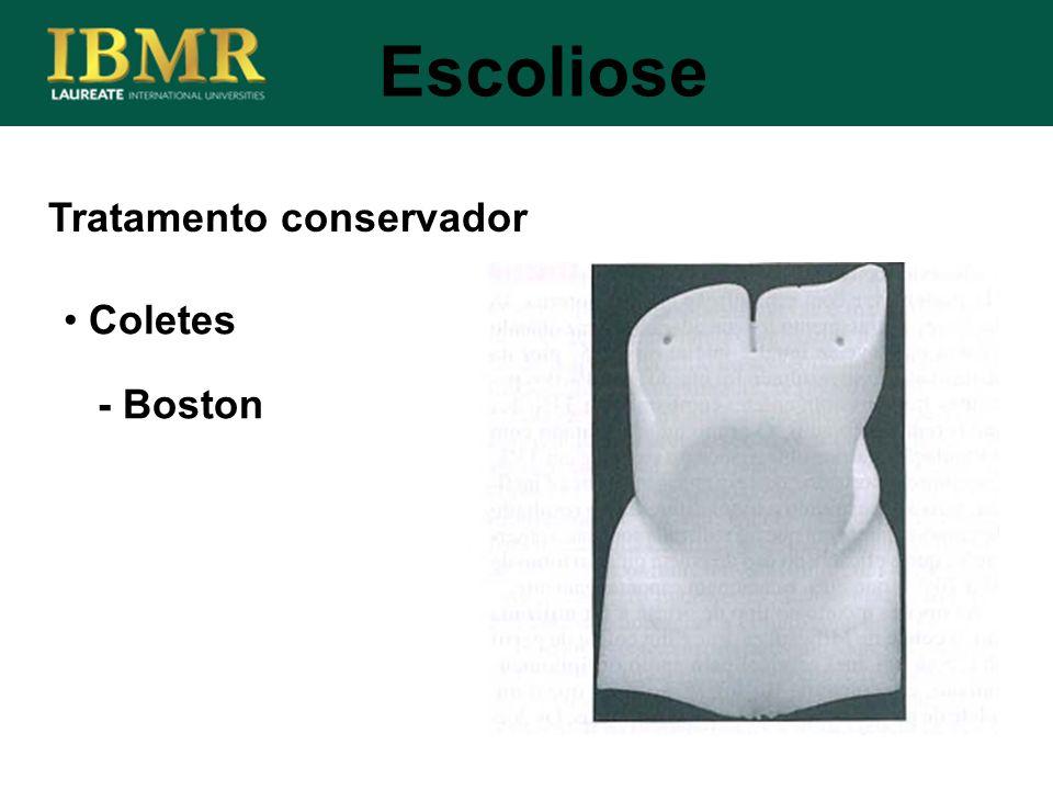 Escoliose Tratamento conservador Coletes - Boston