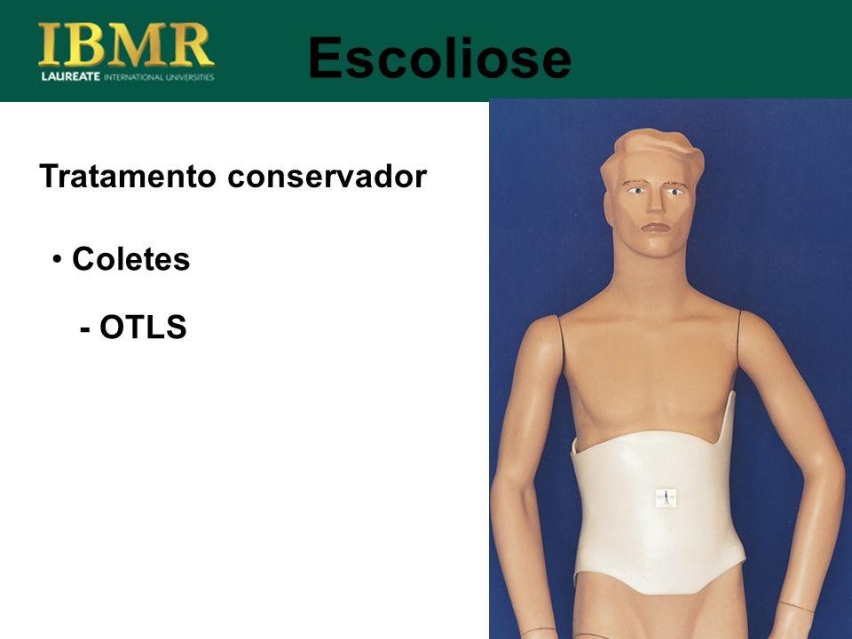 Escoliose Tratamento conservador Coletes - OTLS