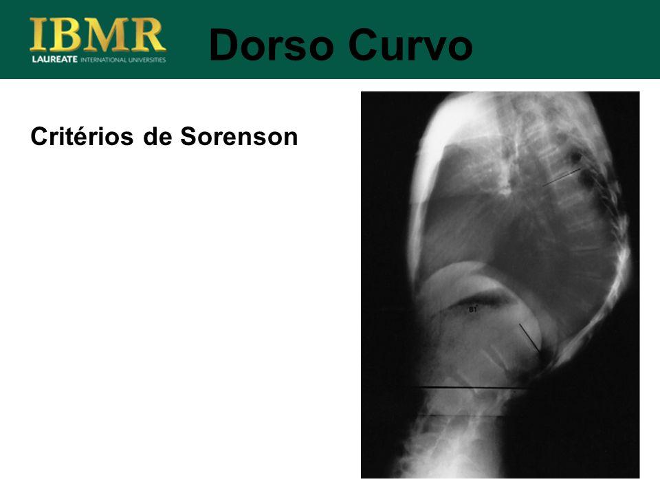 Dorso Curvo Critérios de Sorenson