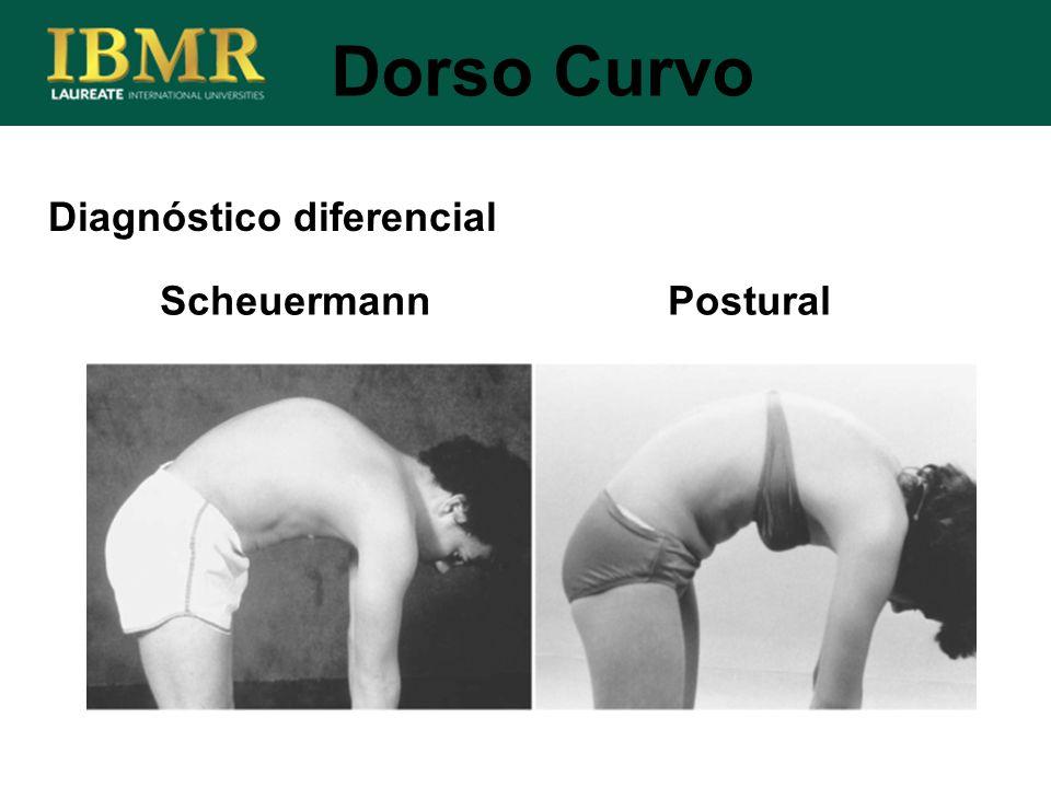 Dorso Curvo Diagnóstico diferencial Scheuermann Postural