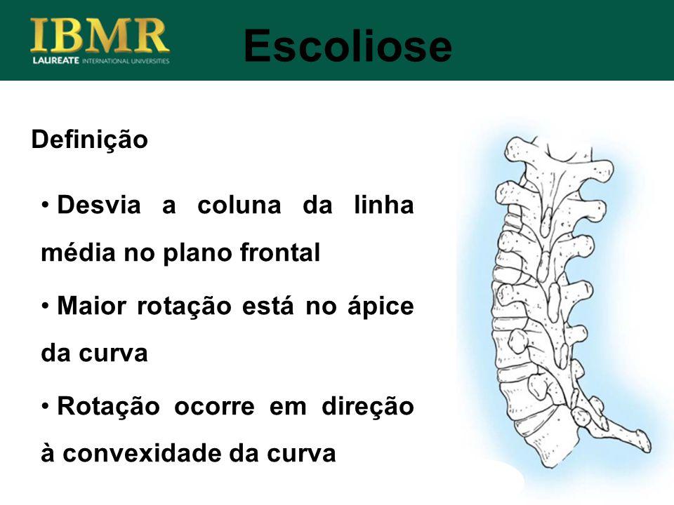 Escoliose Definição Desvia a coluna da linha média no plano frontal