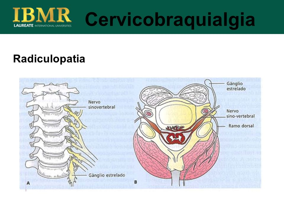 Cervicobraquialgia Radiculopatia