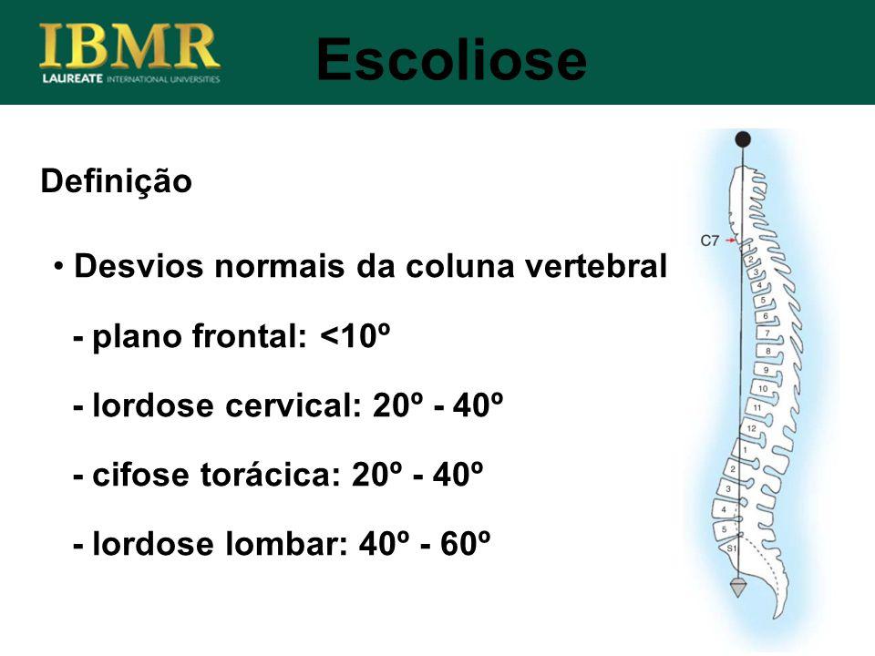 Escoliose Definição Desvios normais da coluna vertebral