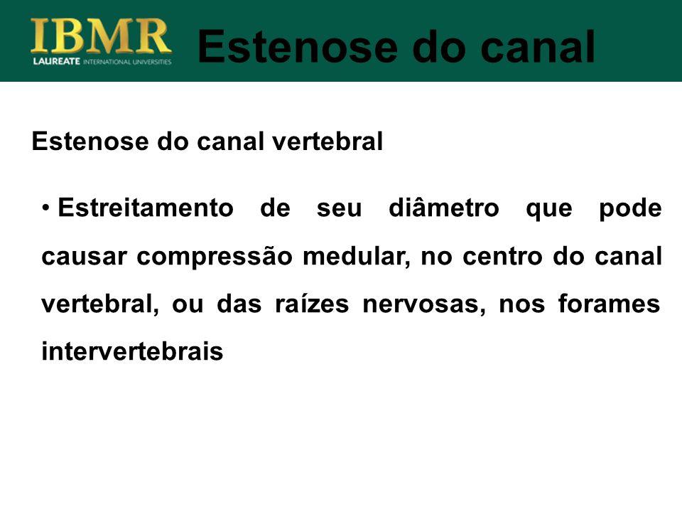 Estenose do canal Estenose do canal vertebral