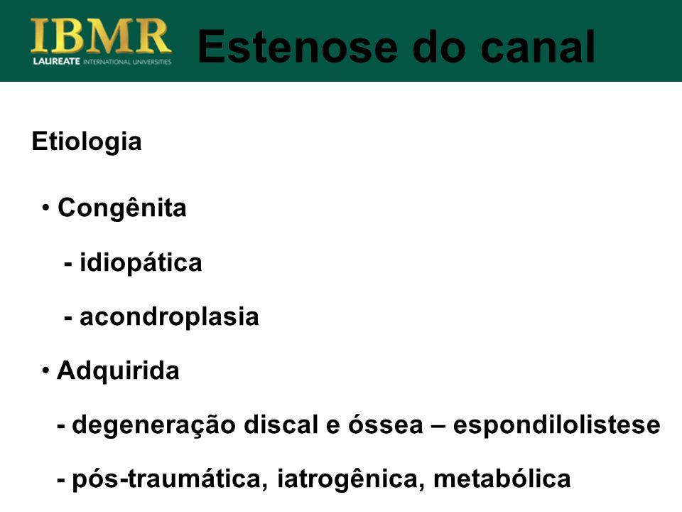 Estenose do canal Etiologia Congênita - idiopática - acondroplasia