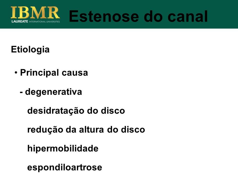Estenose do canal Etiologia Principal causa - degenerativa