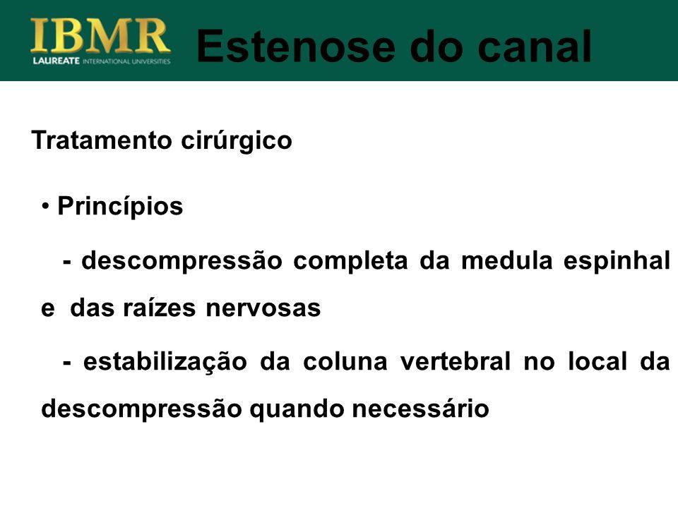 Estenose do canal Tratamento cirúrgico Princípios