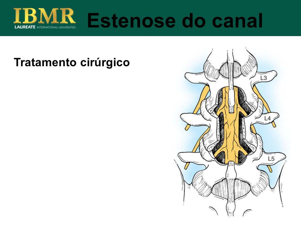 Estenose do canal Tratamento cirúrgico
