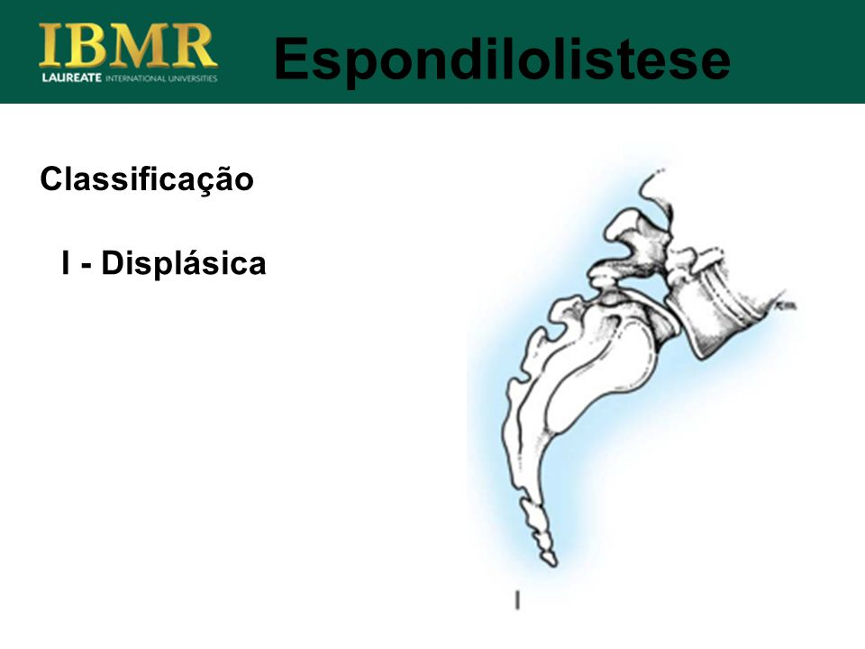 Espondilolistese Classificação I - Displásica