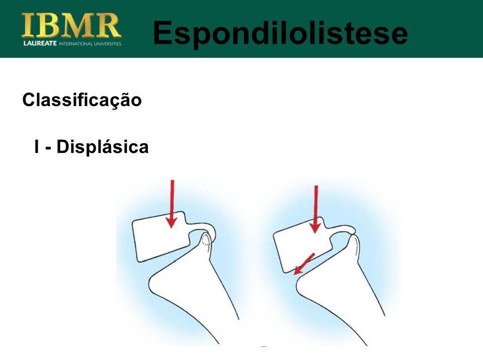 Espondilolistese Classificação I - Displásica