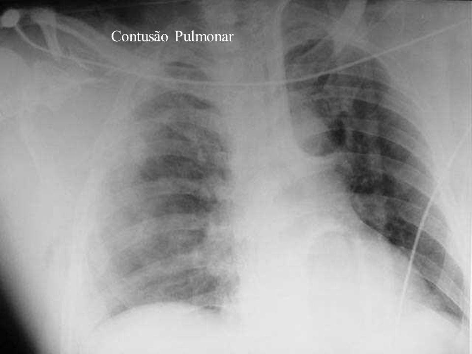 Contusão Pulmonar