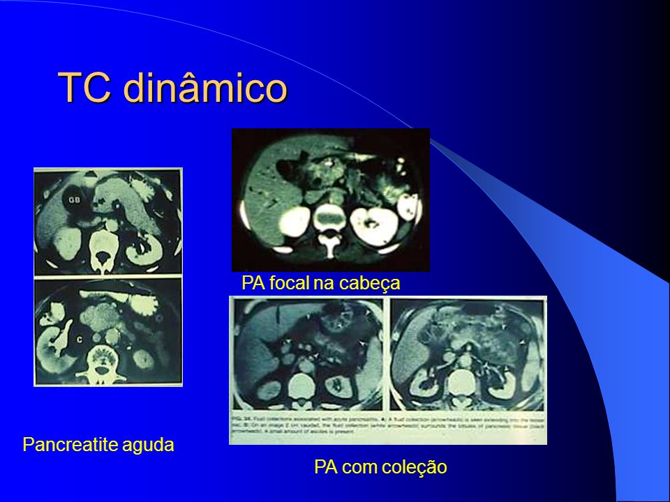 TC dinâmico PA focal na cabeça Pancreatite aguda PA com coleção