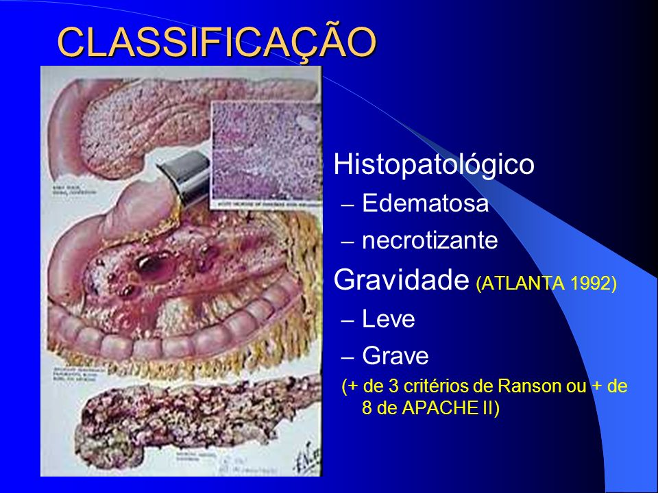 CLASSIFICAÇÃO Histopatológico Gravidade (ATLANTA 1992) Edematosa