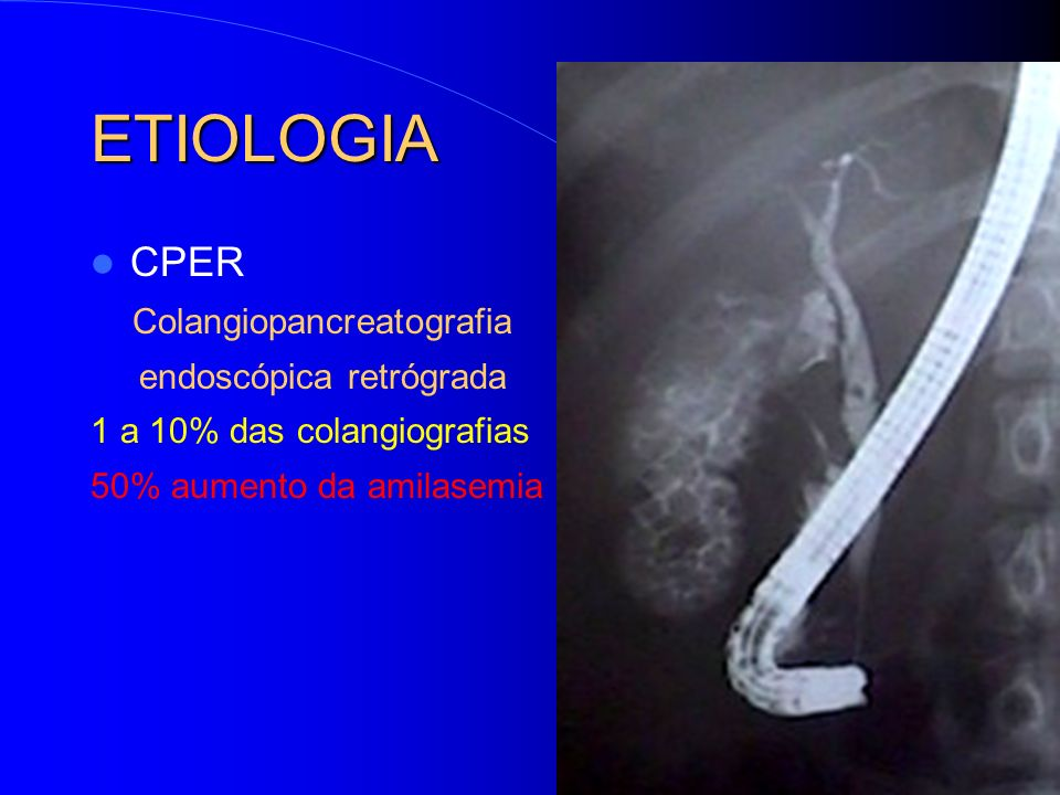ETIOLOGIA CPER Colangiopancreatografia endoscópica retrógrada