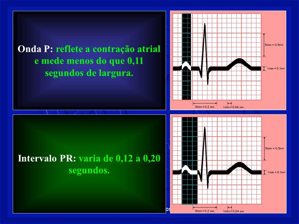 Intervalo PR: varia de 0,12 a 0,20 segundos.