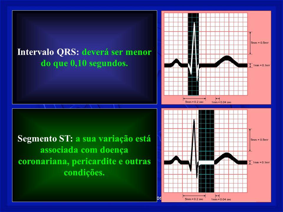 Intervalo QRS: deverá ser menor do que 0,10 segundos.