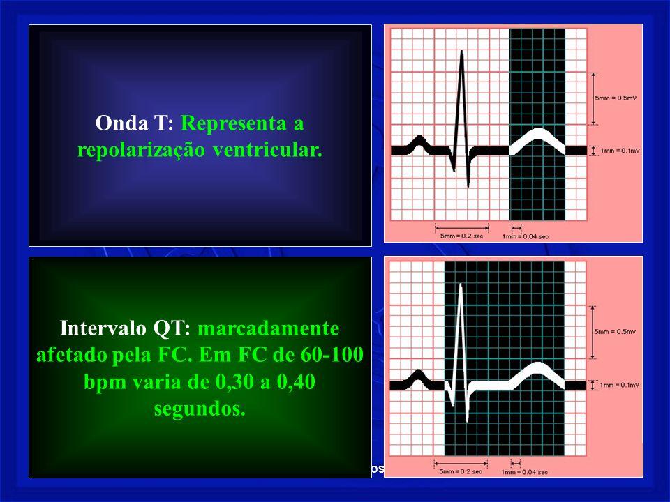 Onda T: Representa a repolarização ventricular.