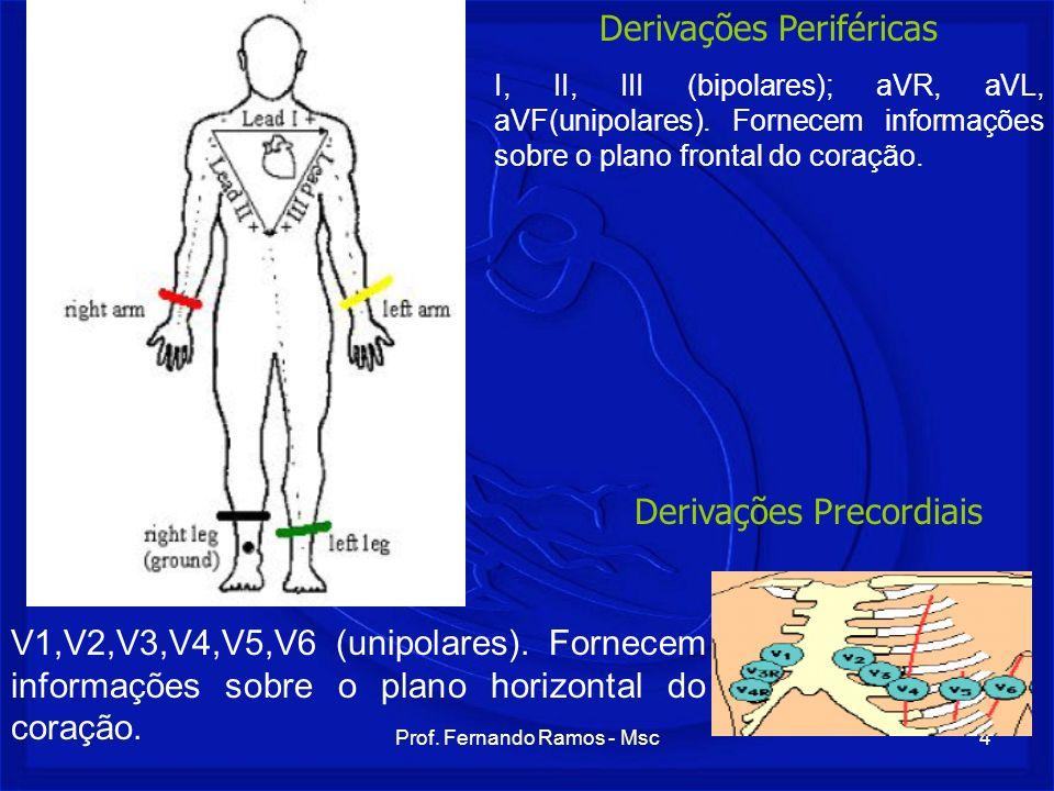 Derivações Periféricas