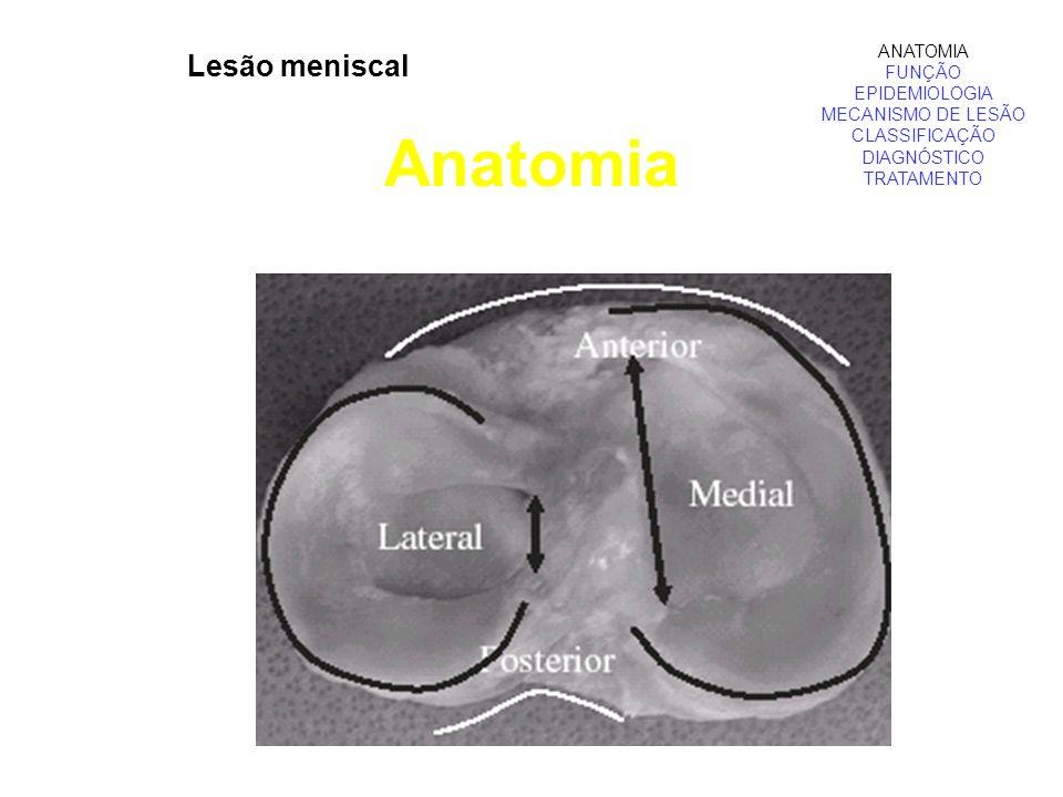 Anatomia Lesão meniscal