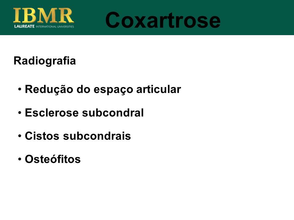 Coxartrose Radiografia Redução do espaço articular
