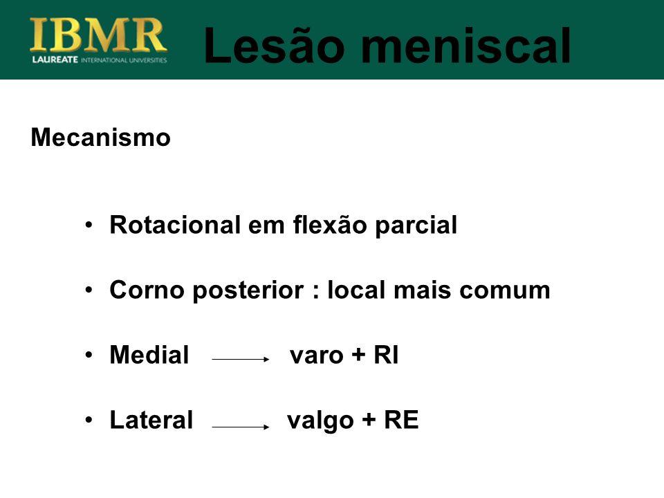 Lesão meniscal Mecanismo Rotacional em flexão parcial