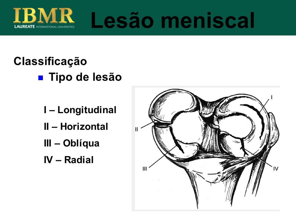 Lesão meniscal Classificação Tipo de lesão I – Longitudinal