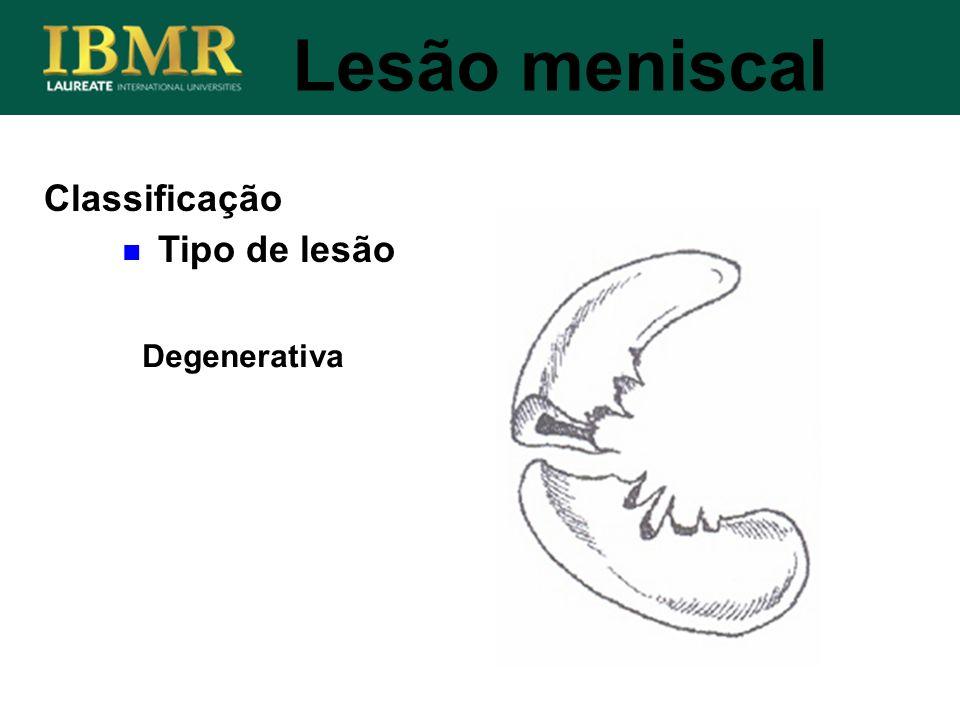 Lesão meniscal Classificação Tipo de lesão Degenerativa