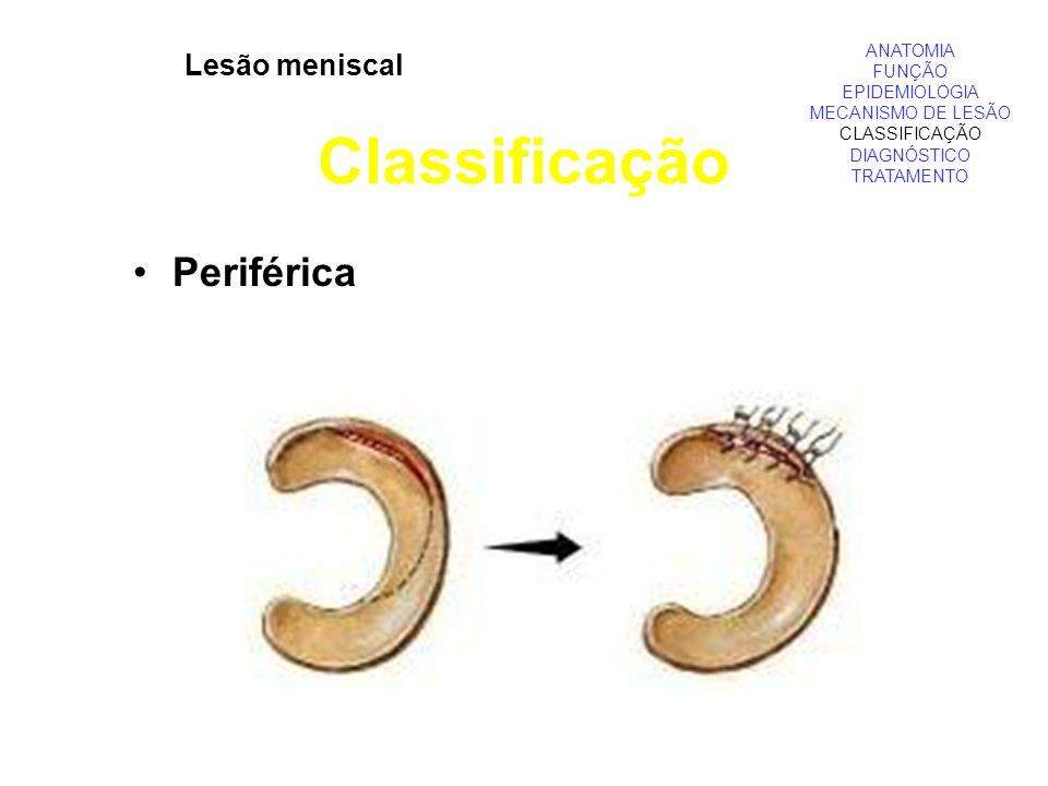 Classificação Periférica Lesão meniscal