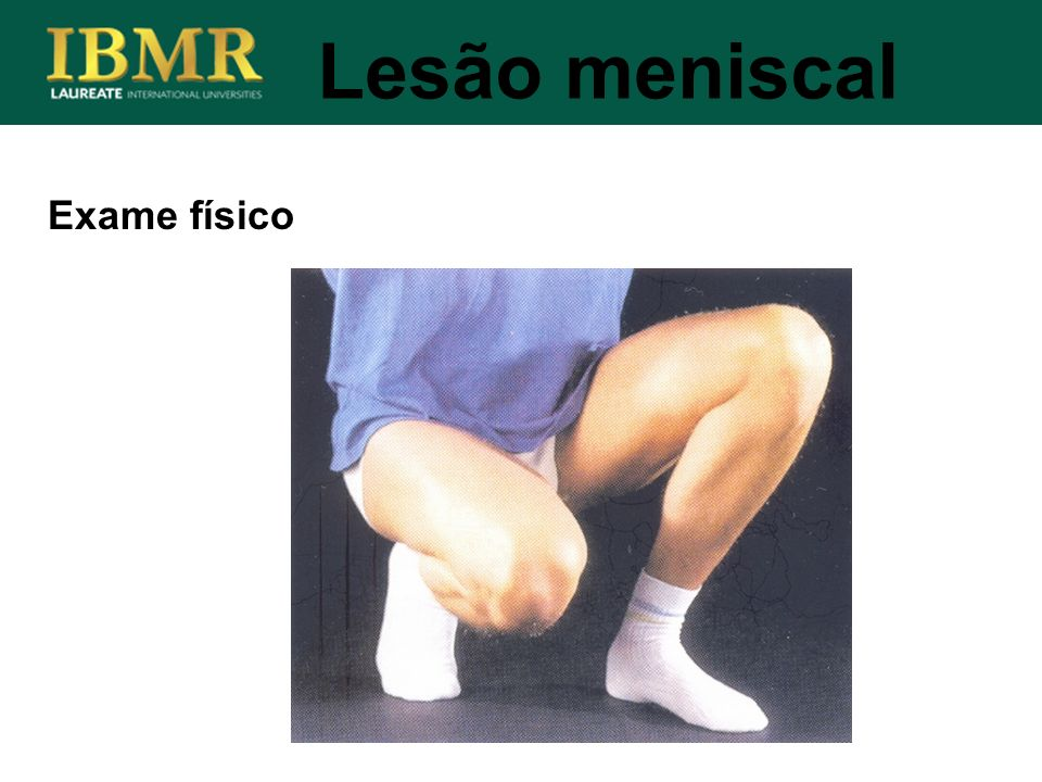 Lesão meniscal Exame físico