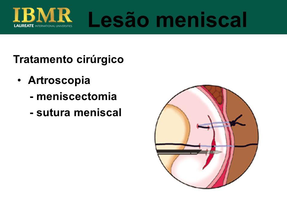 Lesão meniscal Tratamento cirúrgico Artroscopia - meniscectomia