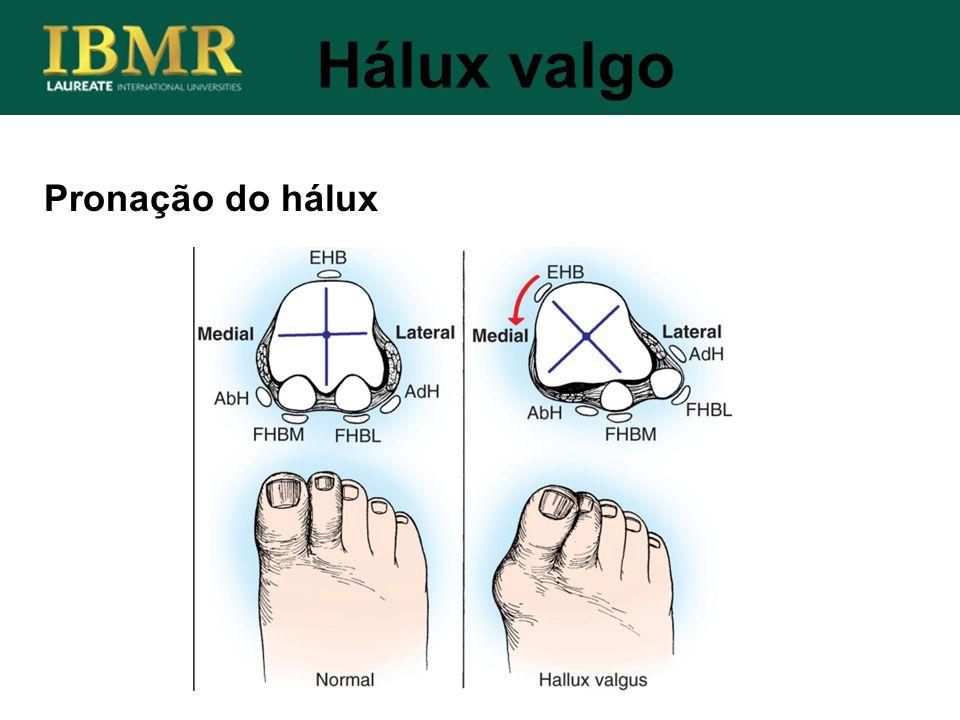 Hálux valgo Pronação do hálux