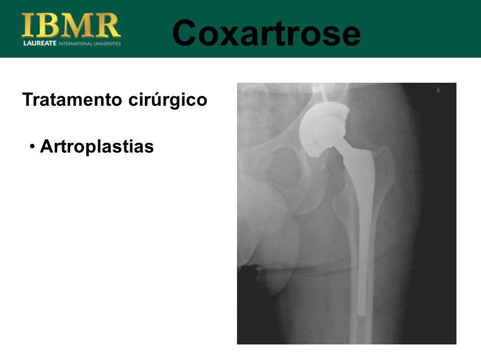 Coxartrose Tratamento cirúrgico Artroplastias