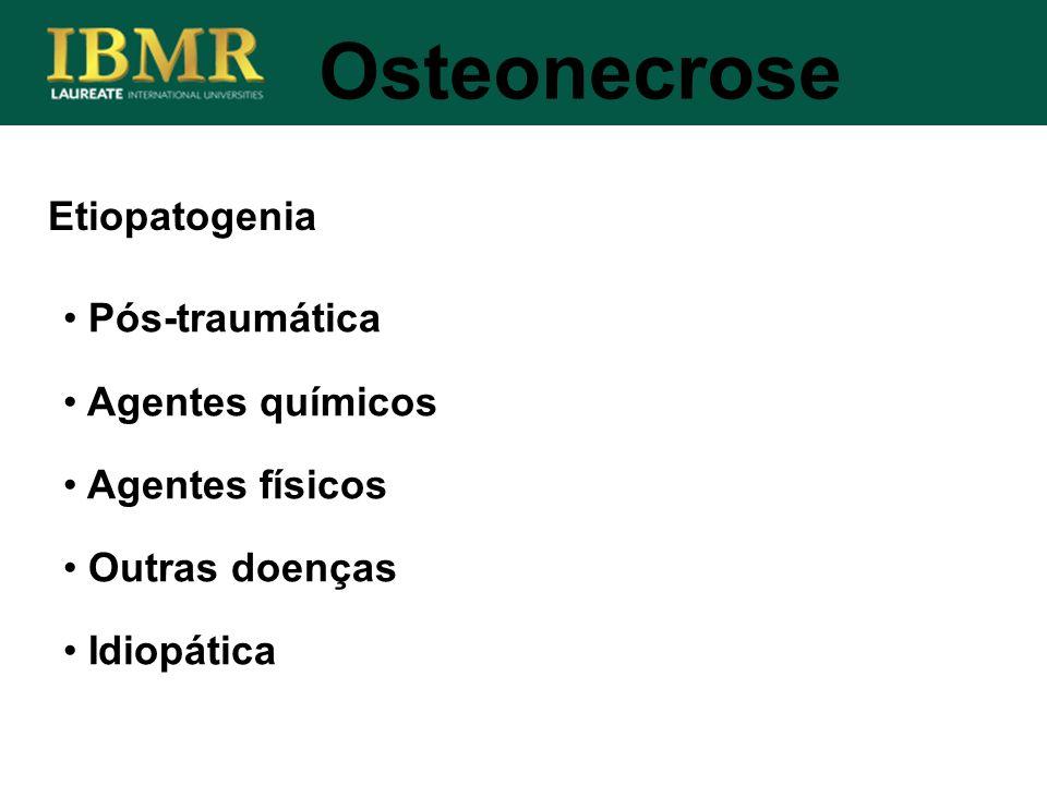 Osteonecrose Etiopatogenia Pós-traumática Agentes químicos