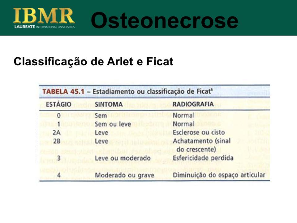 Osteonecrose Classificação de Arlet e Ficat