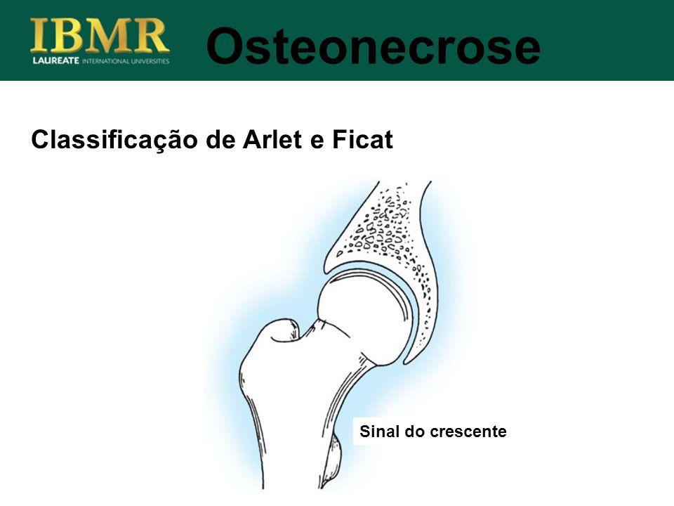 Osteonecrose Classificação de Arlet e Ficat Sinal do crescente