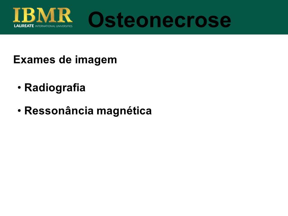 Osteonecrose Exames de imagem Radiografia Ressonância magnética