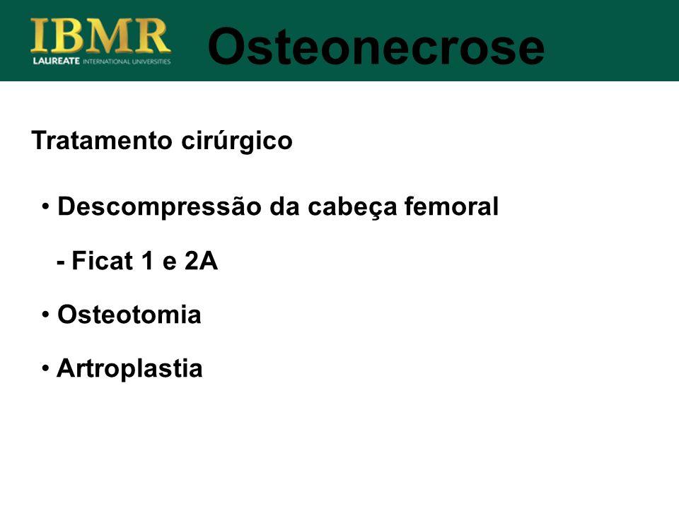 Osteonecrose Tratamento cirúrgico Descompressão da cabeça femoral