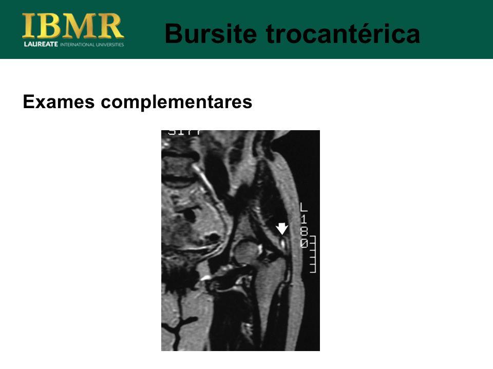 Bursite trocantérica Exames complementares