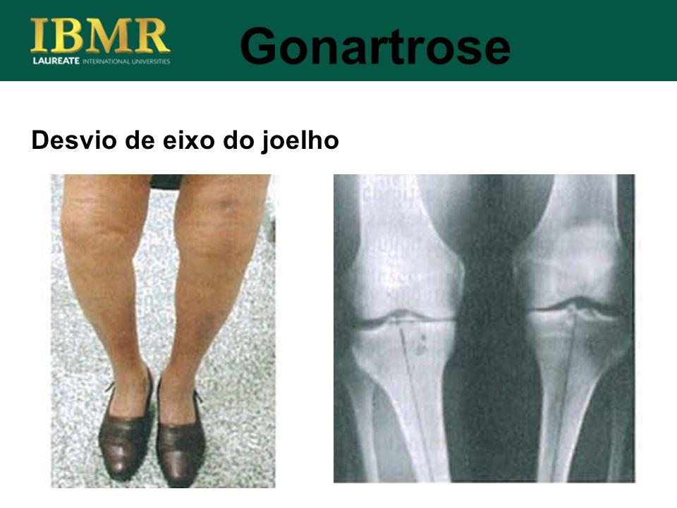 Gonartrose Desvio de eixo do joelho