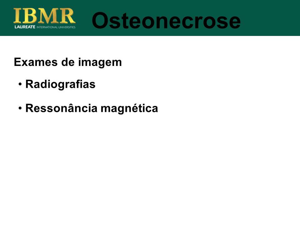 Osteonecrose Exames de imagem Radiografias Ressonância magnética