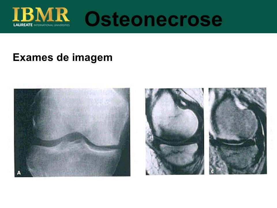 Osteonecrose Exames de imagem