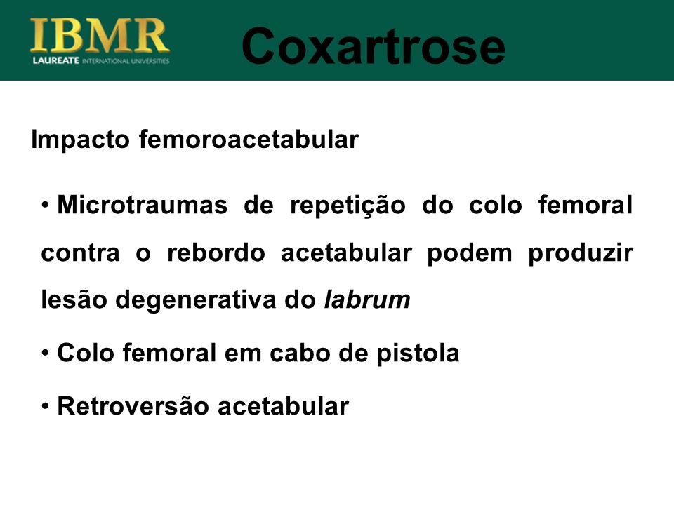 Coxartrose Impacto femoroacetabular