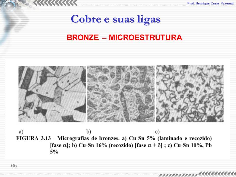 BRONZE – MICROESTRUTURA