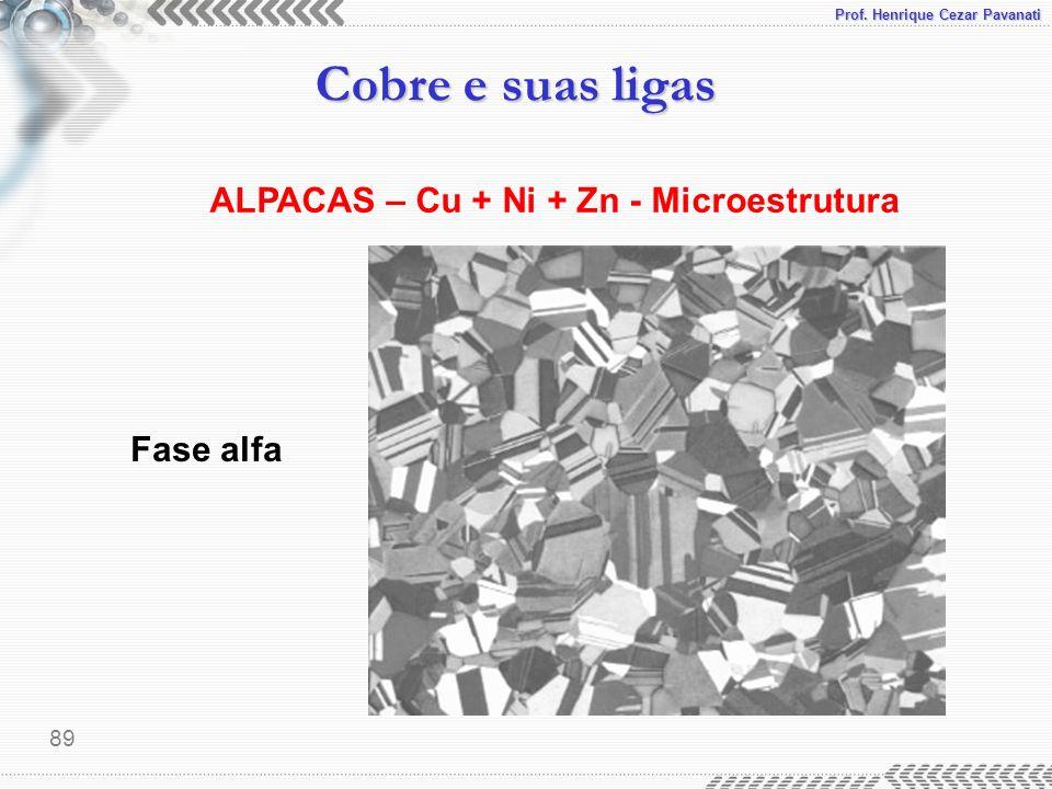 ALPACAS – Cu + Ni + Zn - Microestrutura