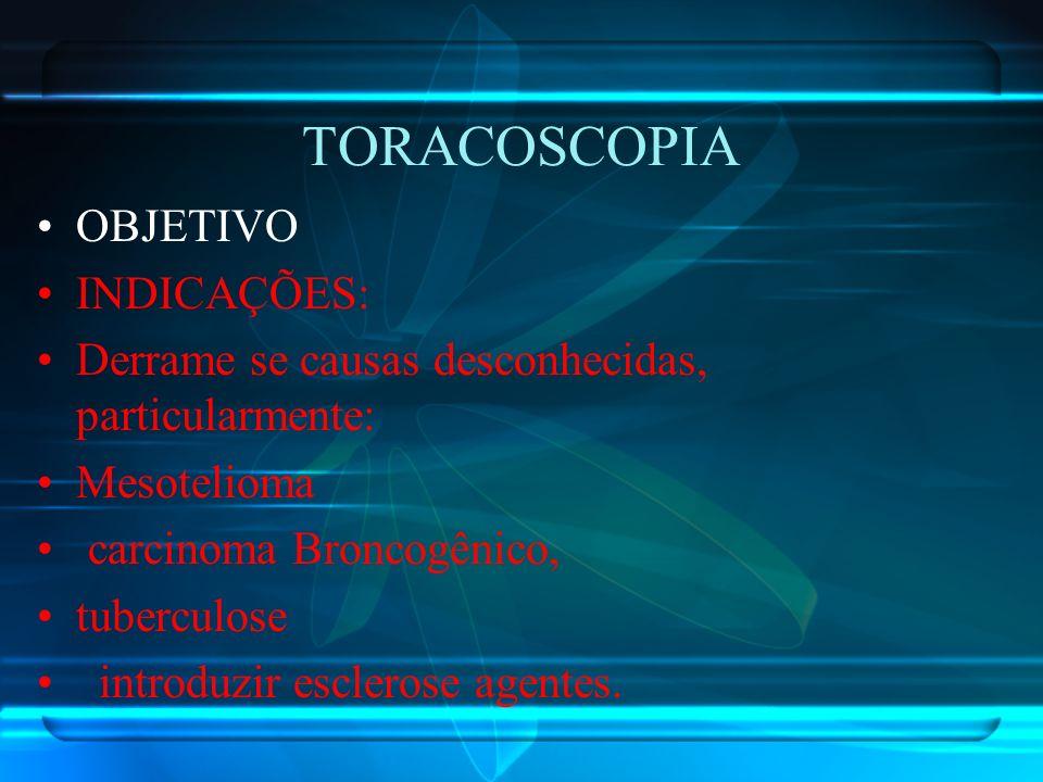 TORACOSCOPIA OBJETIVO INDICAÇÕES: