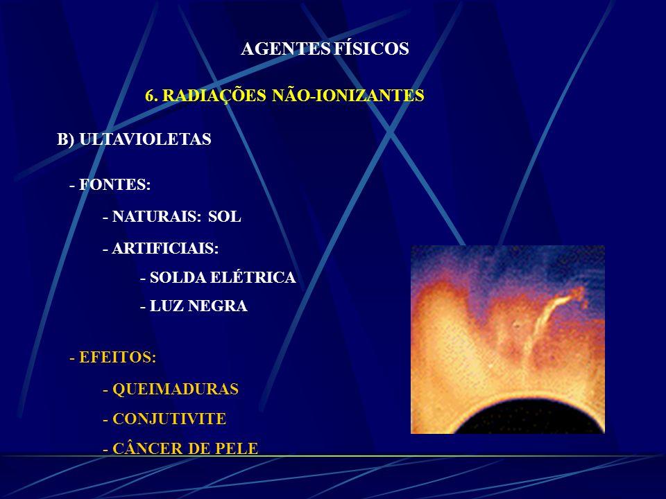 AGENTES FÍSICOS 6. RADIAÇÕES NÃO-IONIZANTES B) ULTAVIOLETAS - FONTES: